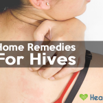 18 Home Remedies to Get Rid of Hives (Fast & Naturally)