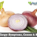 Onion Allergy: Symptoms, Causes & Treatment